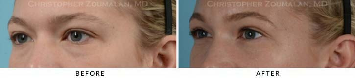 Fillers to treat lower eyelid hollowing Before & After Photo - Patient Seeing Side - Patient 7D