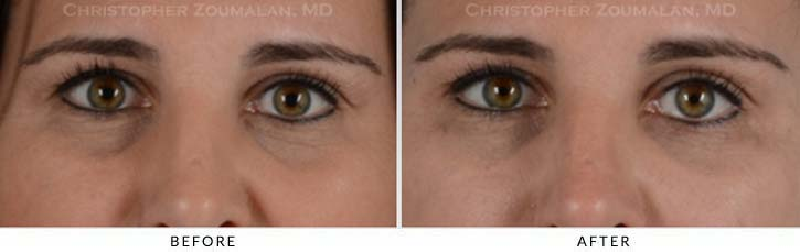 Fillers to treat lower eyelid hollowing Before & After Photo - Patient Seeing Straight - Patient 8A