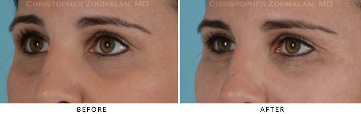 Fillers to treat lower eyelid hollowing Before & After Photo - Patient Seeing Side - Patient 8B