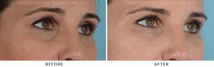 Fillers to treat lower eyelid hollowing Before & After Photo - Patient Seeing Side - Patient 8C