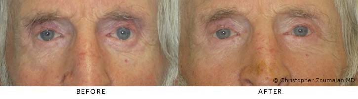 This patient had to undergo a tear duct reconstructive surgery to help his tears drain better in his left eye.