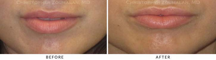 Lip augmentation Before & After Photo - Patient Seeing Straight - Patient 12