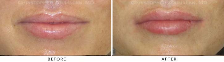 Lip augmentation Before & After Photo - Patient Seeing Straight - Patient 13