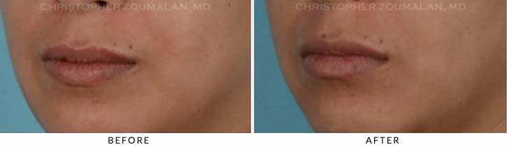 Lip Aug Patient 1