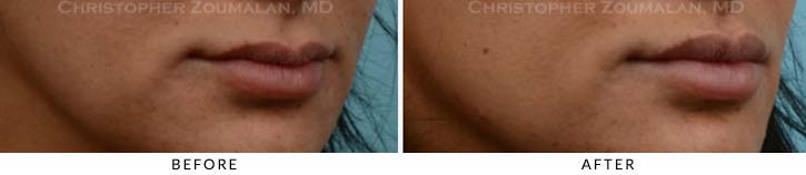 Lip augmentation Before & After Photo - Patient Seeing Side - Patient 7A