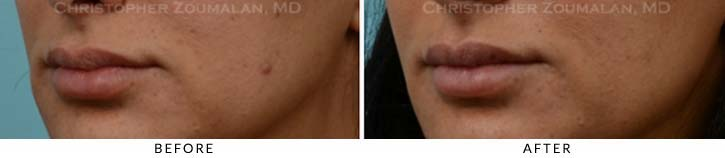 Lip augmentation Before & After Photo - Patient Seeing Side - Patient 7B
