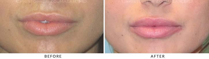Lip augmentation Before & After Photo - Patient Seeing Straight - Patient 8