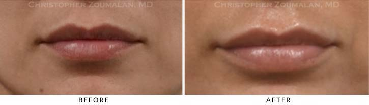 Lip augmentation Before & After Photo - Patient Seeing Straight - Patient 9