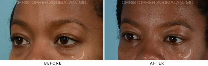 Lower Lid Blepharoplasty Before & After Photo - Patient Seeing side - Patient 1C