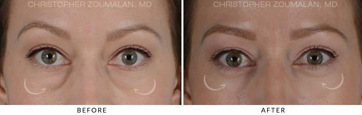 Lower Lid Blepharoplasty Before & After Photo - Patient Seeing Straight - Patient 2A