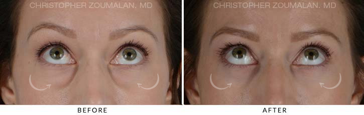 Lower Lid Blepharoplasty Before & After Photo - Patient Seeing Up - Patient 2B