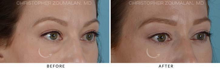 Lower Lid Blepharoplasty Before & After Photo - Patient Seeing Side - Patient 2C