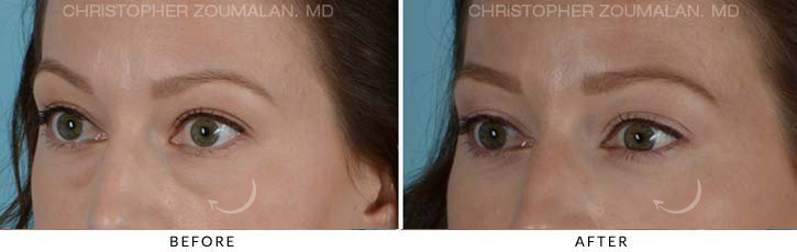 Lower Lid Blepharoplasty Before & After Photo - Patient Seeing Side - Patient 2D