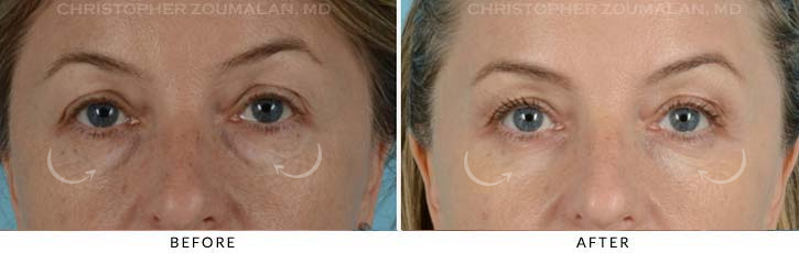 Lower Lid Blepharoplasty Before & After Photo - Patient Seeing Straight - Patient 3A