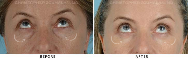 Lower Lid Blepharoplasty Before & After Photo - Patient Seeing Up - Patient 3B