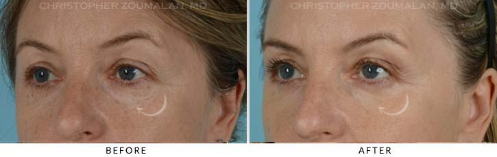 Lower Lid Blepharoplasty Before & After Photo - Patient Seeing Side - Patient 3C