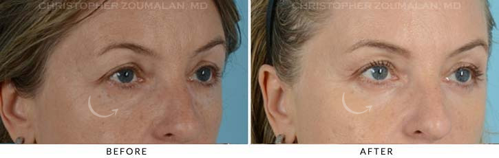Lower Lid Blepharoplasty Before & After Photo - Patient Seeing Side - Patient 3D