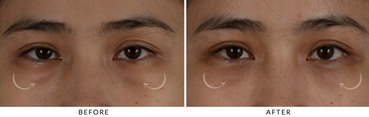 Lower Lid Blepharoplasty Before & After Photo - Patient Seeing Straight - Patient 4A