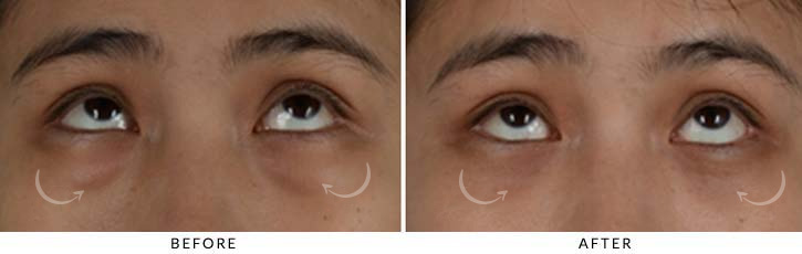 Lower Lid Blepharoplasty Before & After Photo - Patient Seeing Up - Patient 4B