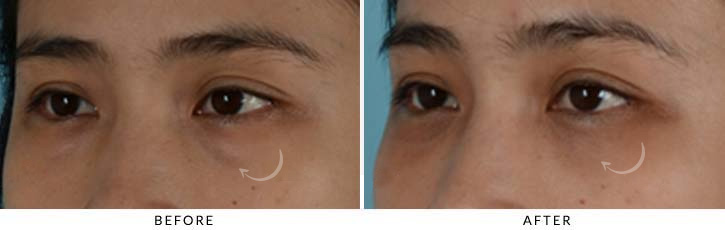 Lower Lid Blepharoplasty Before & After Photo - Patient Seeing Side - Patient 4C