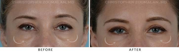 Lower Lid Blepharoplasty Before & After Photo - Patient Seeing Straight - Patient 5A
