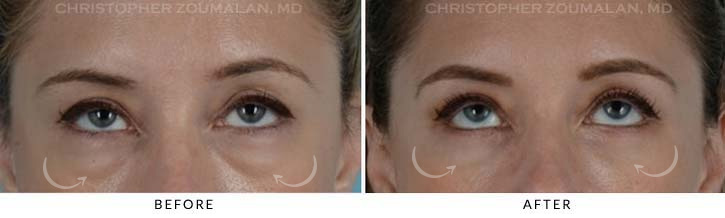Lower Lid Blepharoplasty Before & After Photo - Patient Seeing Up - Patient 5B