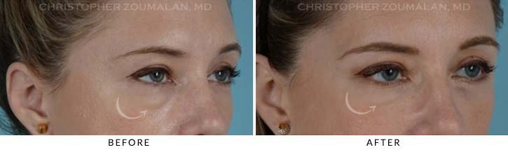 Lower Lid Blepharoplasty Before & After Photo - Patient Seeing Side - Patient 5C