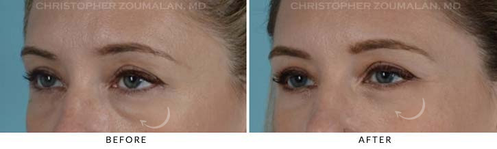 Lower Lid Blepharoplasty Before & After Photo - Patient Seeing Side - Patient 5D