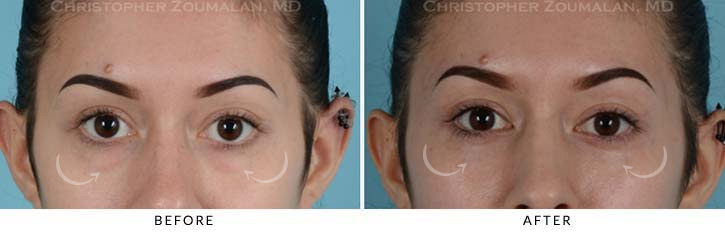 Lower Lid Blepharoplasty Before & After Photo - Patient Seeing Straight - Patient 6A