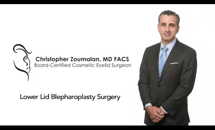 Lower Lid Blepharoplasty Video