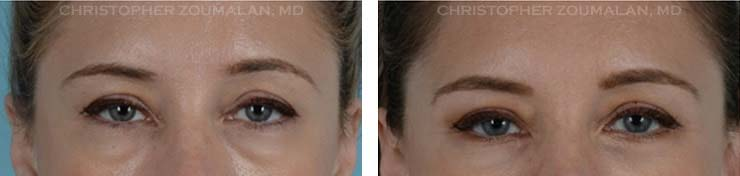 Lower Lid Blepharoplasty Front look