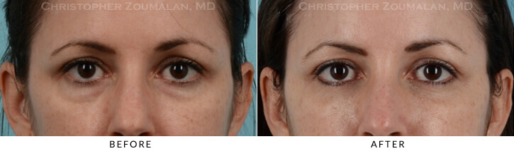 Lower Lid Blepharoplasty Before & After Photo - Patient Seeing Straight - Patient 13A