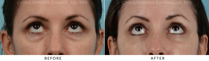 Lower Lid Blepharoplasty Before & After Photo - Patient Seeing Up - Patient 13B