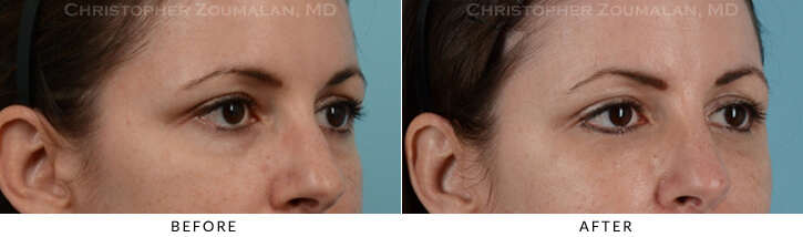 Lower Lid Blepharoplasty Before & After Photo -  - Patient 13C