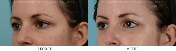 Lower Lid Blepharoplasty Before & After Photo - Patient Seeing Side - Patient 13D