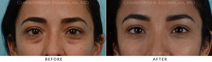 Lower Lid Blepharoplasty Before & After Photo - Patient Seeing Straight - Patient 14A