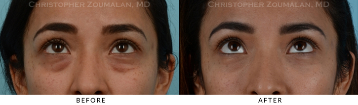 Lower Lid Blepharoplasty Before & After Photo - Patient Seeing Up - Patient 14B