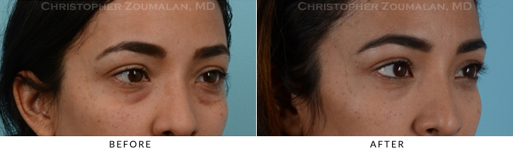 Lower Lid Blepharoplasty Before & After Photo -  - Patient 14C