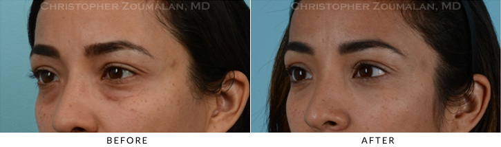 Lower Lid Blepharoplasty Before & After Photo - Patient Seeing Side - Patient 14D