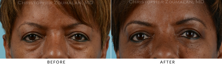 Lower Lid Blepharoplasty Before & After Photo - Patient Seeing Straight - Patient 15A