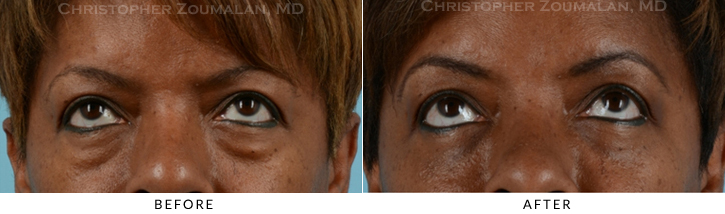 Lower Lid Blepharoplasty Before & After Photo - Patient Seeing Up - Patient 15B