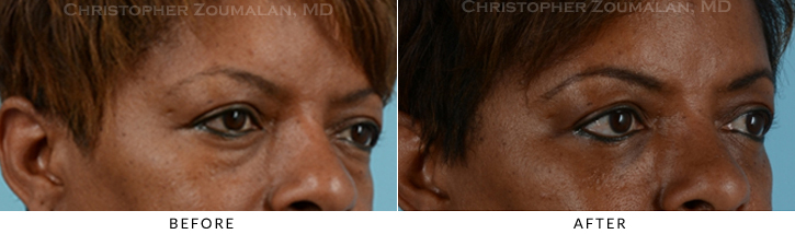 Lower Lid Blepharoplasty Before & After Photo -  - Patient 15C