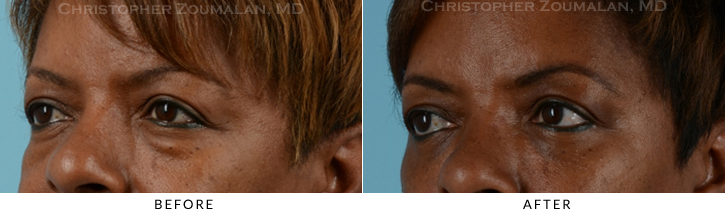 Lower Lid Blepharoplasty Before & After Photo - Patient Seeing Side - Patient 15D