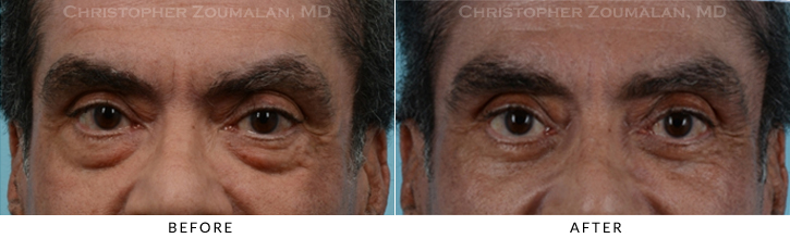 Lower Lid Blepharoplasty Before & After Photo - Patient Seeing Straight - Patient 16A