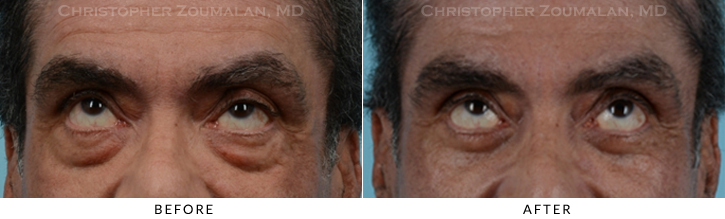 Lower Lid Blepharoplasty Before & After Photo - Patient Seeing Up - Patient 16B
