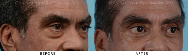 Lower Lid Blepharoplasty Before & After Photo -  - Patient 16C
