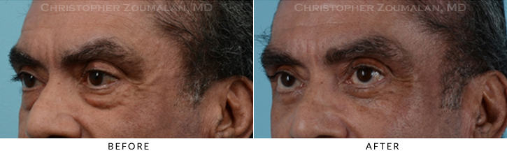 Lower Lid Blepharoplasty Before & After Photo - Patient Seeing Side - Patient 16D