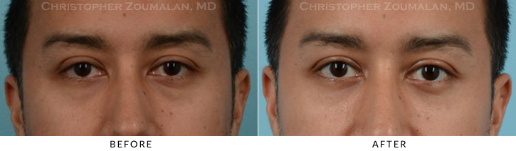 Lower Lid Blepharoplasty Before & After Photo - Patient Seeing Straight - Patient 17A