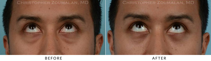 Lower Lid Blepharoplasty Before & After Photo - Patient Seeing Up - Patient 17B
