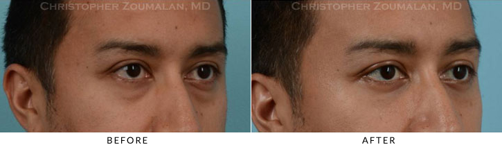 Lower Lid Blepharoplasty Before & After Photo -  - Patient 17C